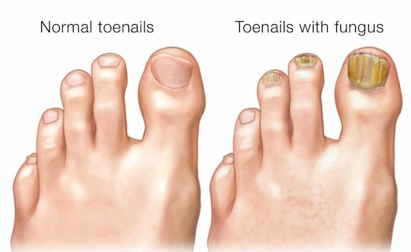 Toenail-Fungal-Infections